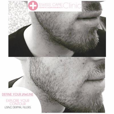 male jawline treatment
