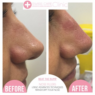 reduce nose size