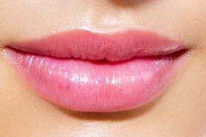 Face and lip Fillers