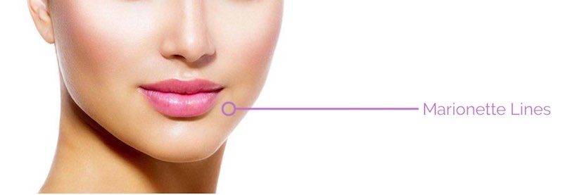 Face Fillers | Swiss Care for all Beauty Treatments and Cosmetic Surgery