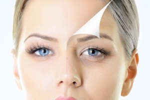 swiss-care-clinic-london-cosmetic-laser-skin-aesthetic-skin-clinic-chemical-peel-smaller