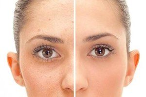 swiss-care-clinic-london-cosmetic-laser-skin-aesthetic-skin-clinic-skin-tag-removal-before-after